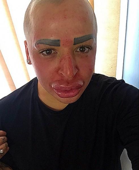 Jordan Parke Plastic Surgery Vampire Facial