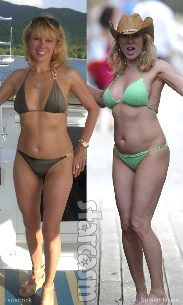 Ramona Singer boob job before and after