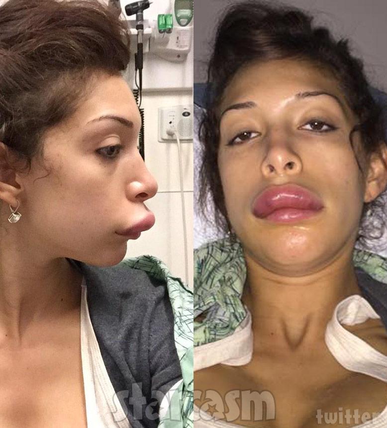 Farrah Abraham lip injections