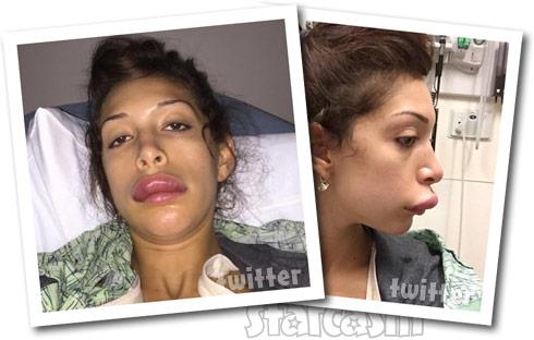 Farrah Abraham lips swollen