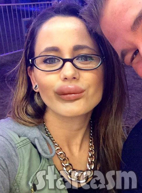 Photos Jenelle Evans Lip Injections And Getting Job Offers