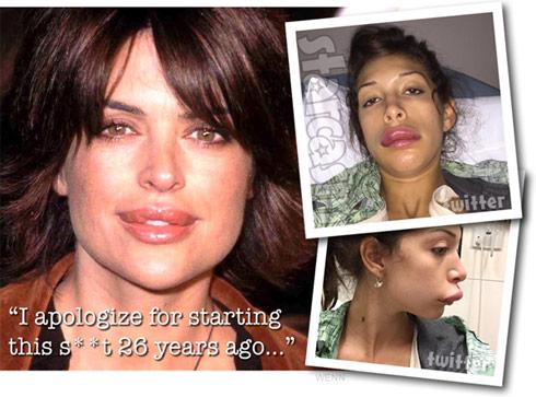 Lisa Rinna Farrah Abraham lips apology