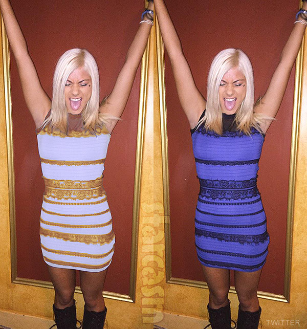 American Idol Jax The Dress blue and black and gold and white