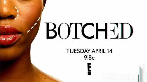 Botched Season 2 premiere