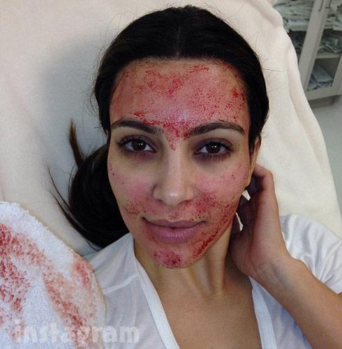 Kim Kardashian vampire facial with her own blood