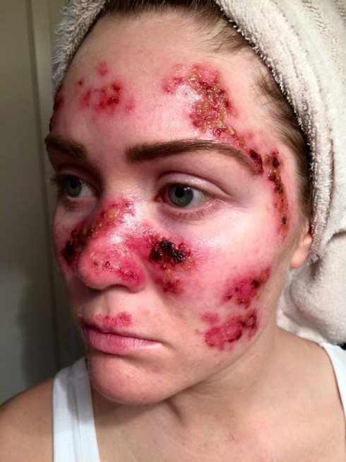 Tawny Willoughby Skin Cancer Treatments