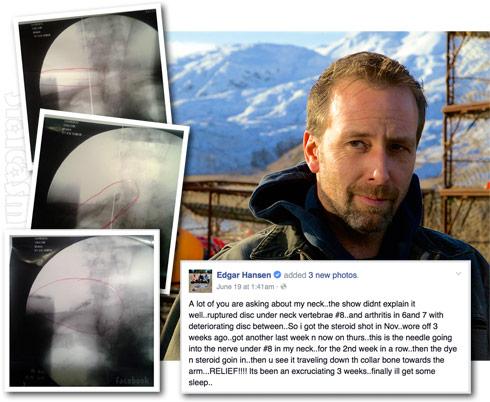 Deadliest Catch Edgar Hansen spine injury update