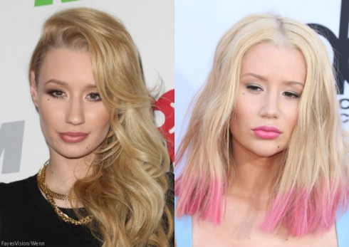 Before and After Iggy Azalea Nose Job