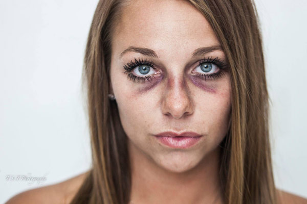 Brooke Beaton domestic violence abuse photo