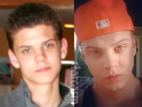 Tyler Baltiera ears before and after photos