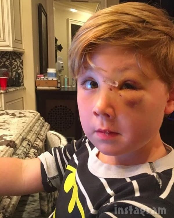 Kim Zolciak Biermann son Kash face injuries from dog attack