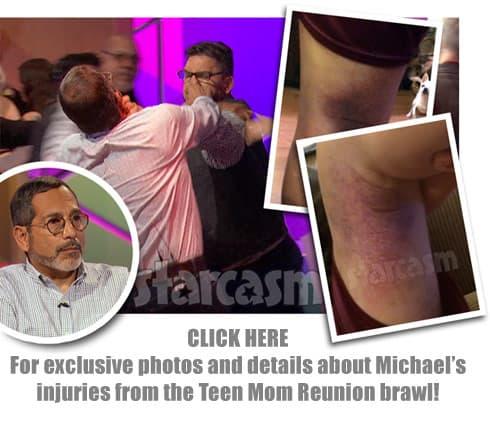 Michael Abraham Reunion brawl with Matt Baier link
