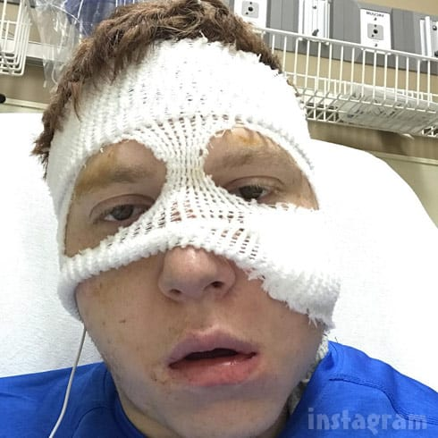 Jacob Toborowsky post-surgery selfie