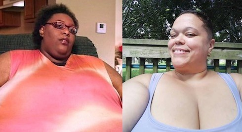 My 600 Lb Life Tara before and after 8