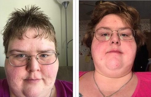 My 600 Lb Life Holly update 2