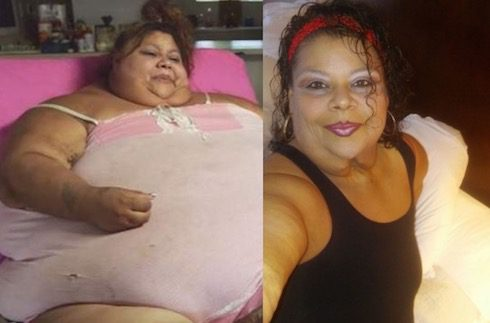 My 600 Lb Life biggest weight loss Lupe