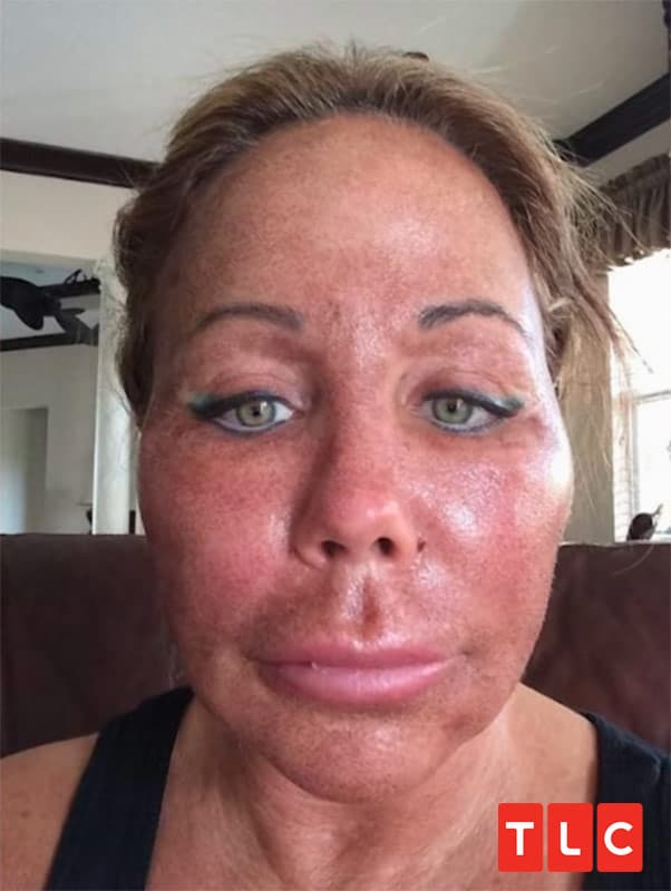 TLC sMothered Mary plastic surgery photo