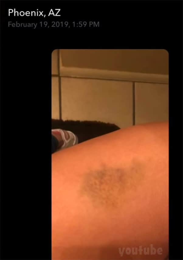 TLC Unexpected Chloe Mendoza bruise she says Max caused by kicking her