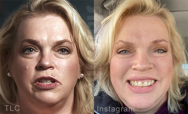 Sister Wives Janelle Brown lip cancer removed