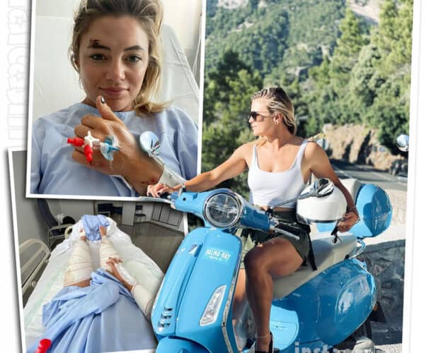 Below Deck Med Malia White scooter accident photos