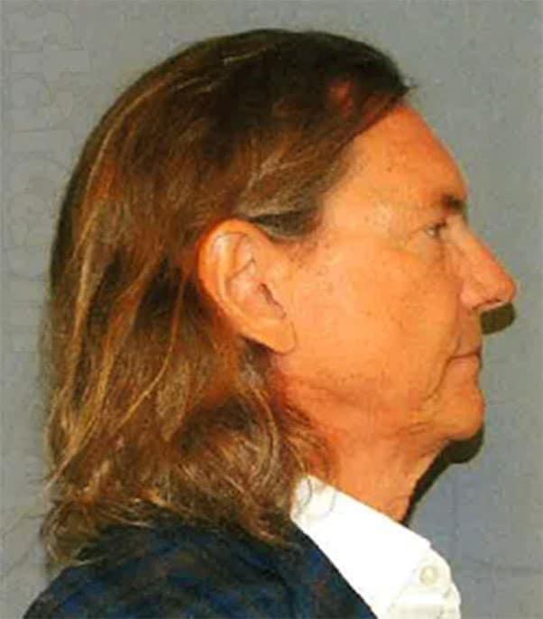 Bill Hutchinson arrest mugshot